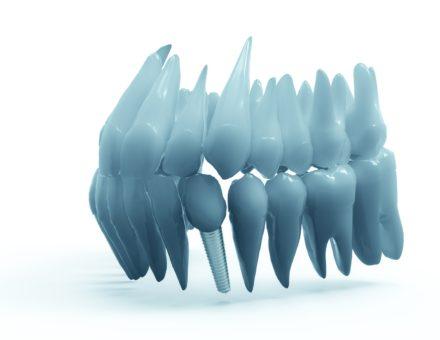 Kilka słów o implantach stomatologicznych