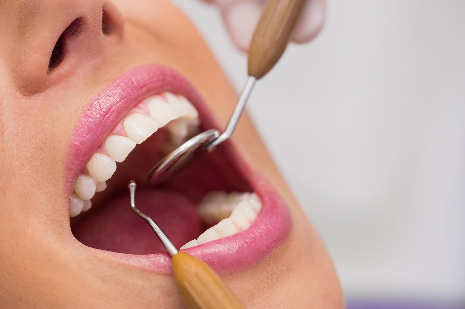 Przegląd uzębienia - Gabinet Uśmiechu - Gabinet Stomatologiczny